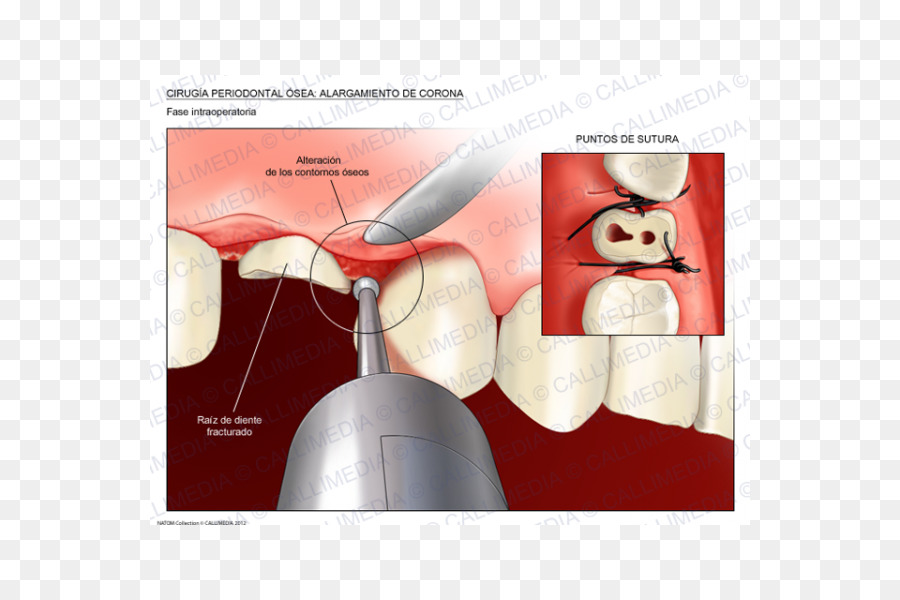 Tooth Cartoon Png Download 600 600 Free Transparent Crown Lengthening Png Download Cleanpng Kisspng By vlad buga · updated about 2 months ago. tooth cartoon png download 600 600